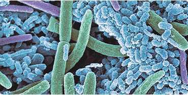 fogkő mikroszkóp alatt